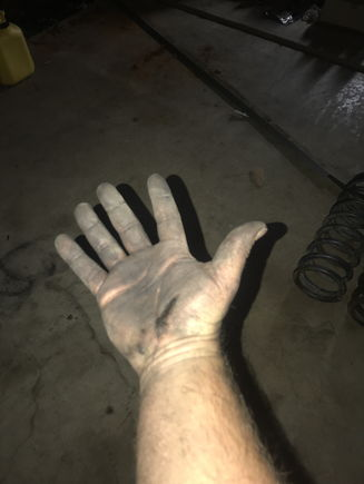 Why do my hands look like this every day?