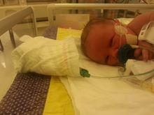 Grace with eyes open in nicu